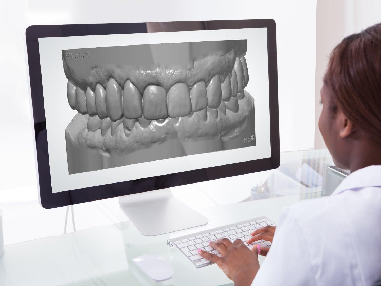 DenMat Dental Lab - Digital Impression Systems