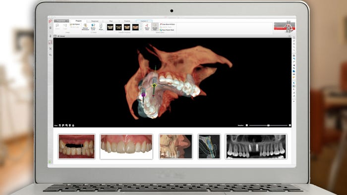 Study Club: Digital Planning and Workflow for Implant Dentistry