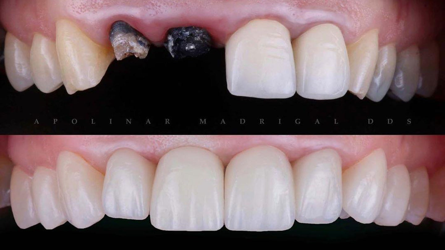 Lumineers Veneers Clinical Dentistry by Dr. Apolinar Madrigal