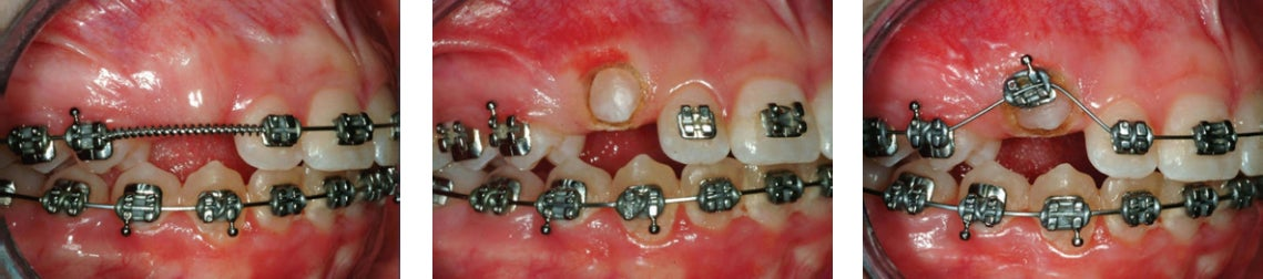 Cuspid Exposure accomplished with dental diode laser