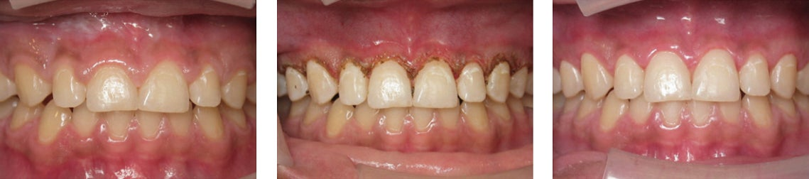 Use a dental laser for Gingivectomy procedures