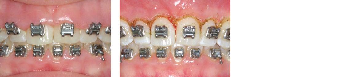 Hyperplasia procedure with dental laser