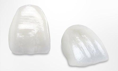 Lumineers - Porcelain Veneers