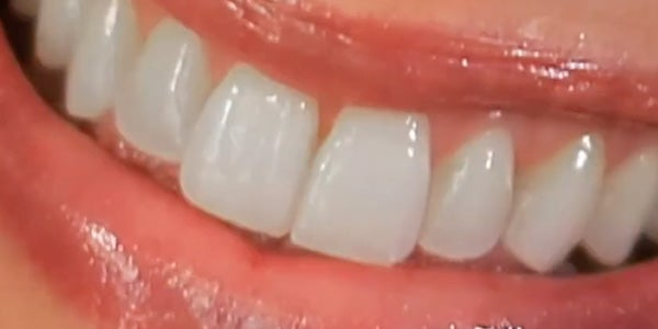 Teeth Whitening: Tried and True vs. Hip and New